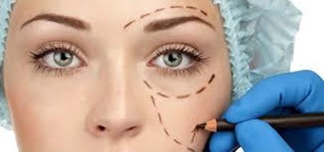 Cirugia-estetica-parpados-barcelona