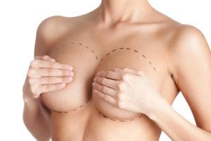 ¿Es segura una operación de aumento mamario?